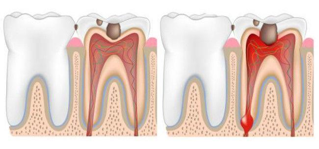 شکل- تصویر سمت راست پالپیت برگشت ناپذیر و تصویر سمت چپ پالپیت برگشت پذیر را نشان میدهد.