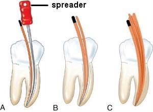 پر کردن دندان در درمان ریشه