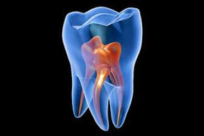 مشکلات و بیماری های پالپ دندان