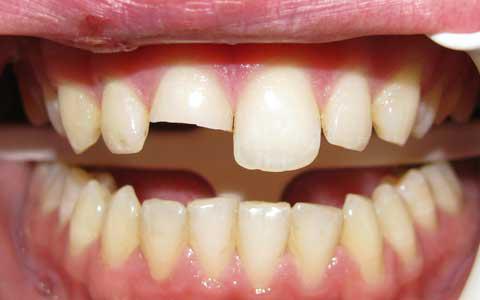 ترک خوردن و شکستن دندان