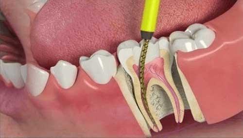 سؤالات پرتکرار در مورد درمان ریشه یا عصب کشی دندان