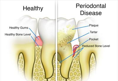 آبسهی دندان و تحلیل رفتن استخوان زیر لثه