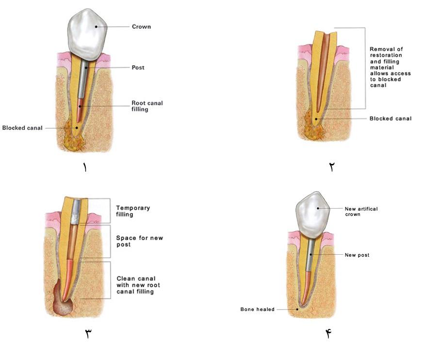 درمان مجدد ریشه (عصب کشی مجدد)
