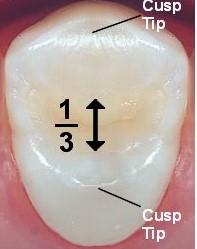 تفاوت روکش دندان و پر کردن دندان