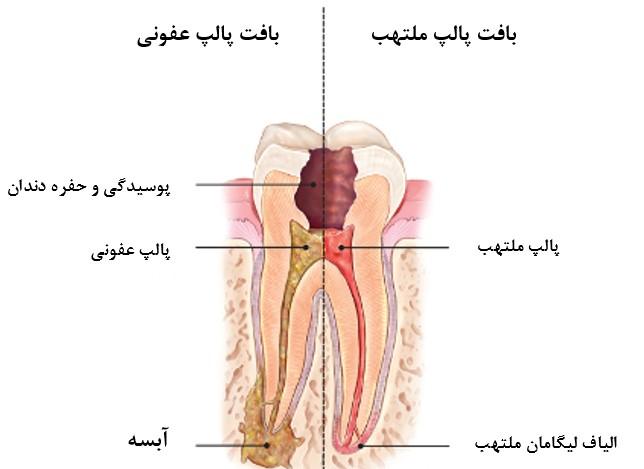 آبسه دندان پس از عصب کشی