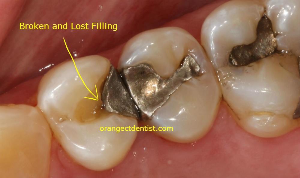 آسیب دیدن پر شدگی دندان