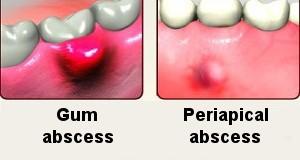 شکل- تصویر سمت راست آبسه پری اپیکال (نوک ریشه دندان) و تصویر سمت چپ آبسه لثه را نشان میدهد.