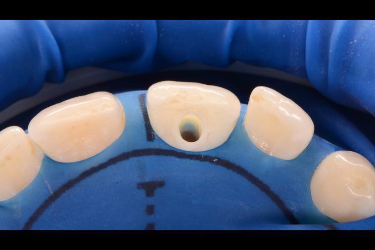 ترمیم و بازسازی دندان پس از درمان ریشه یا عصب کشی