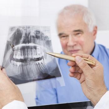 تاثیر دخانیات و سیگار بر درمان ریشه دندان