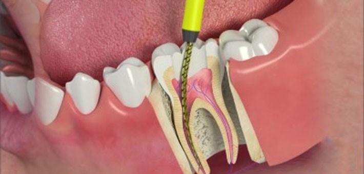 شکل- عصب کشی دندان