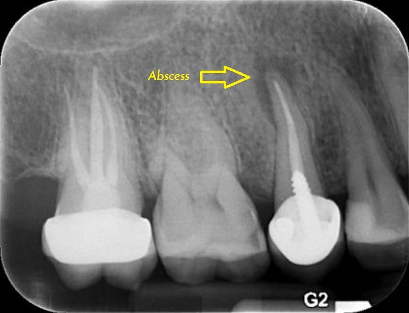 عکس پرتوی ایکس