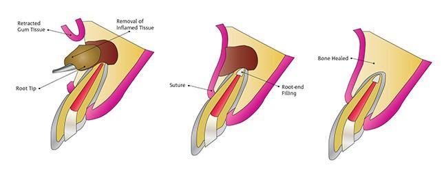 جراحی ریشه دندان یا اپیکواکتومی چیست