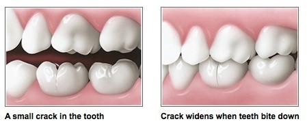 چه عواملی باعث عفونت دندان میشوند؟