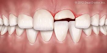 انواع جراحات پالپ دندان و درمان آنها