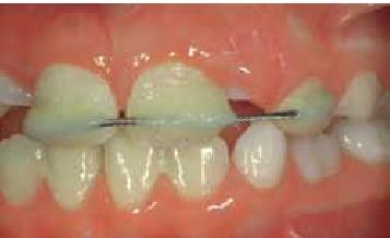 شکل- آتل کردن دندان پیوند شده با سیم و باندینگ کامپوزیت