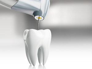 ۱۰ سؤال پرتکرار در مورد درمان ریشه یا عصب کشی دندان