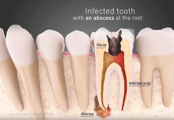 molar tooth abscess - 580×400