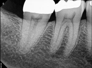 رادیوگرافی قبل از درمان ریشه