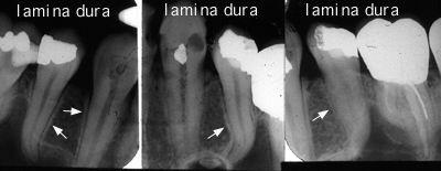 نیاز به درمان ریشه بر اساس تصویر رادیوگرافی