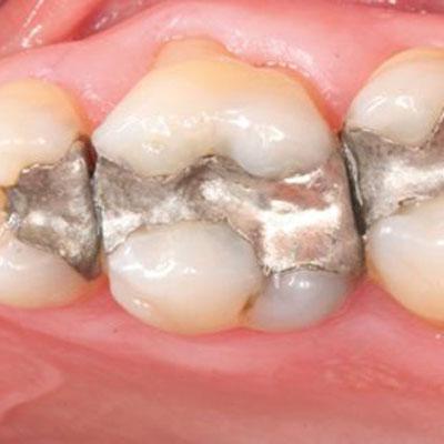 پاسخ پرسش های شما در مورد آمالگام های دندانی
