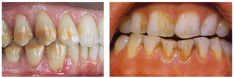 تغییر رنگ دندان