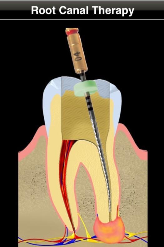 تشخیص و درمان دندان از دست رفته