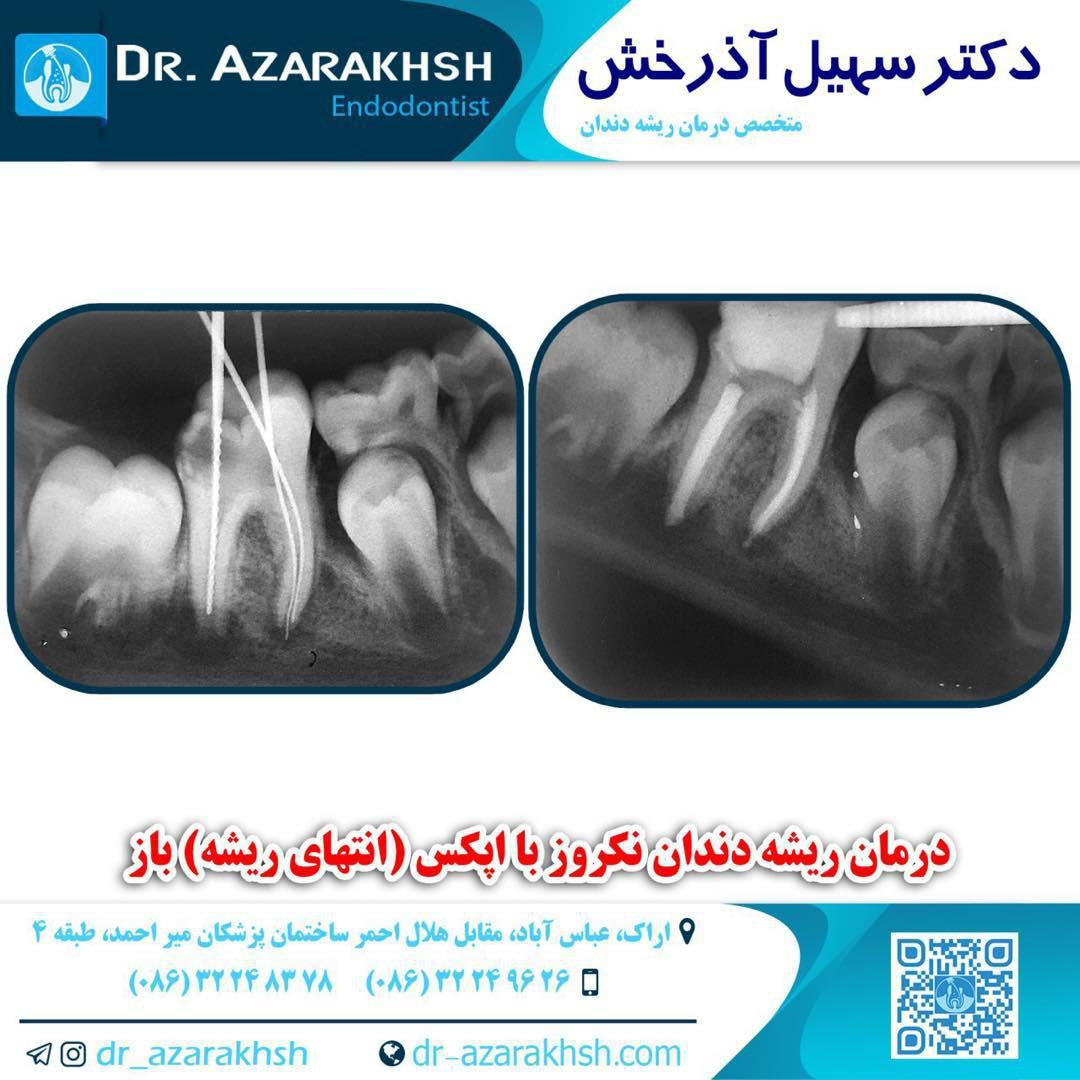 درمان ریشه دندان نکروز با اپکس