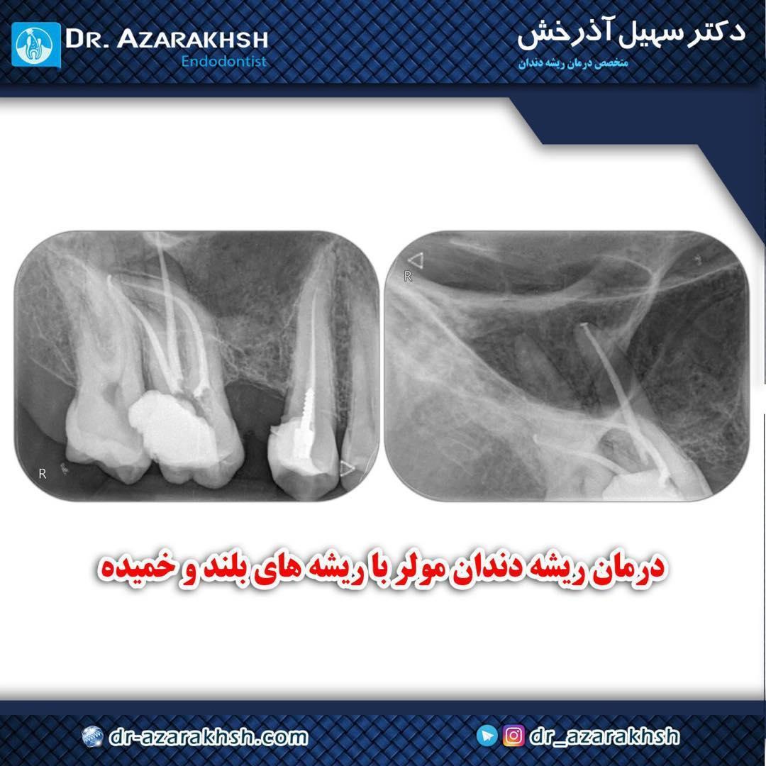 عصب کشی دندان مولر با ریشه خمیده