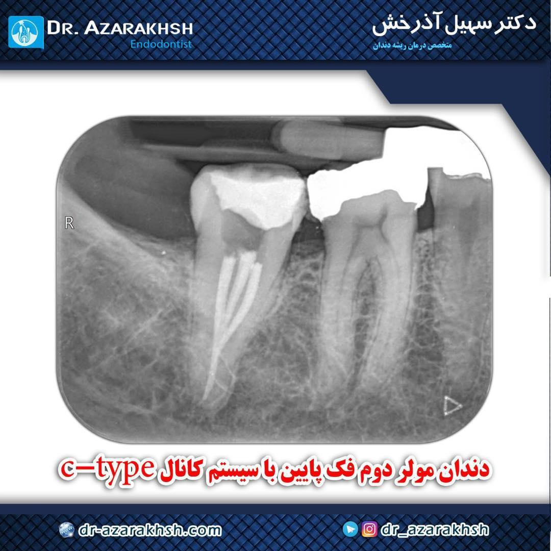 عصب کشی دندان مولر دوم فک پایین