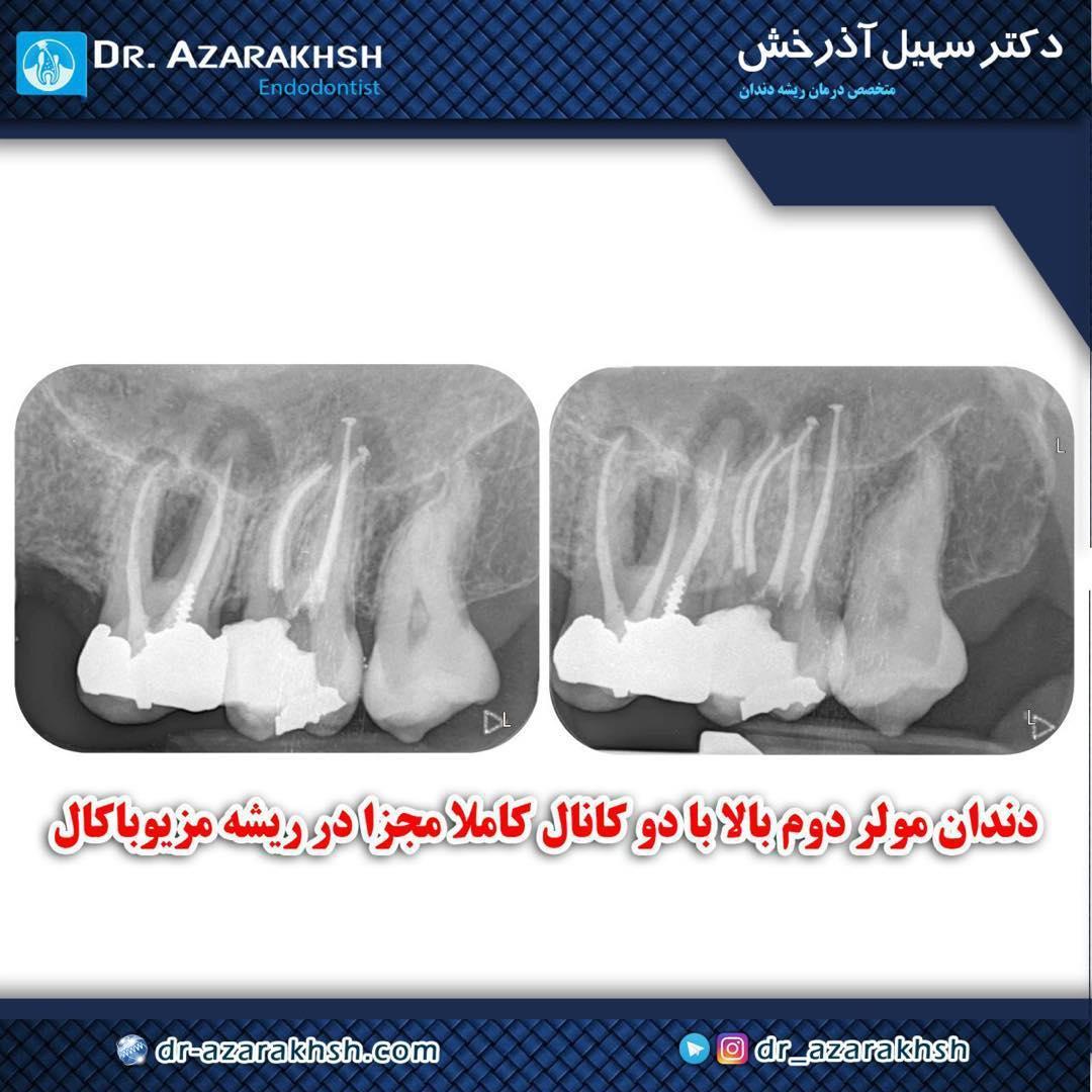 عصب کشی دندان مولر دوم فک بالا