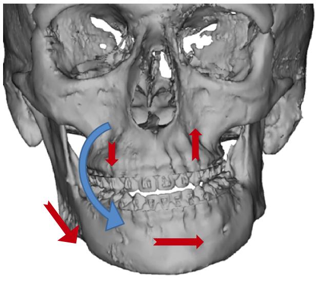 دندان صاف و سلامت بدن