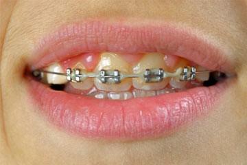 سفید نگه داشتن دندان در ارتودنسی