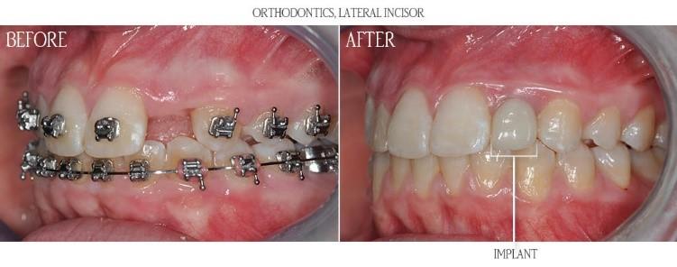 ارتودنسی روی دندان های روکش شده