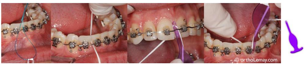 بهداشت دهان در طول درمان ارتودنسی